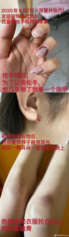【博狗体育】张培萌被妻子爆料出轨:深夜相约 被发现后再次家暴